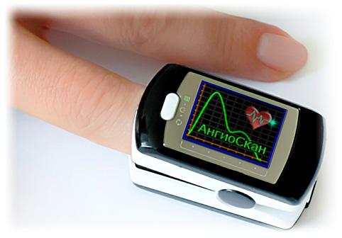 Медицинский прибор для домашней диагностики сосудов, АнгиоСкан-01П