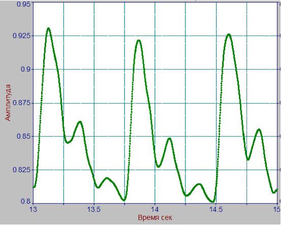 Пример типичных пульсовых волн объема